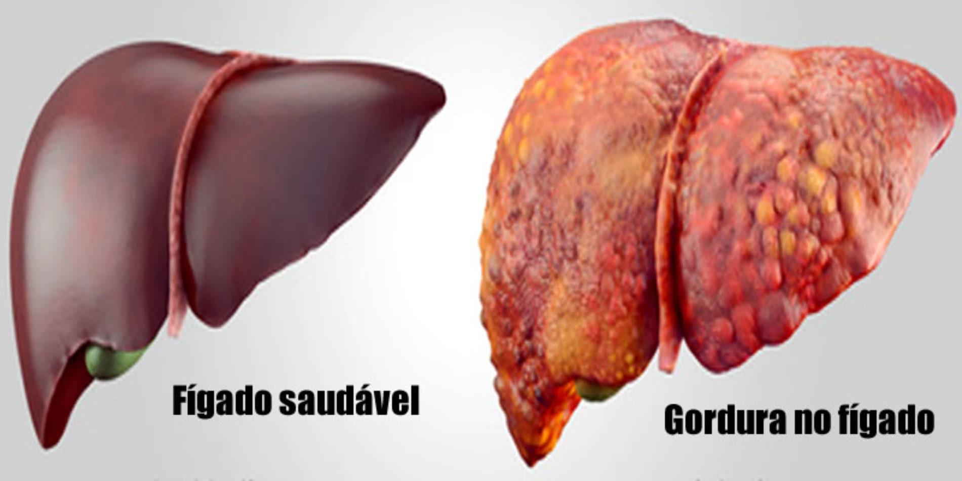 Gordura no fígado: Dieta, melhores alimentos e dicas